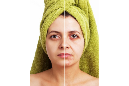 Deluxe Stem Cell Face Lift Treatment