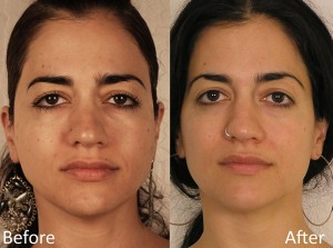 TAMA Microcurrent facial treatment before and after