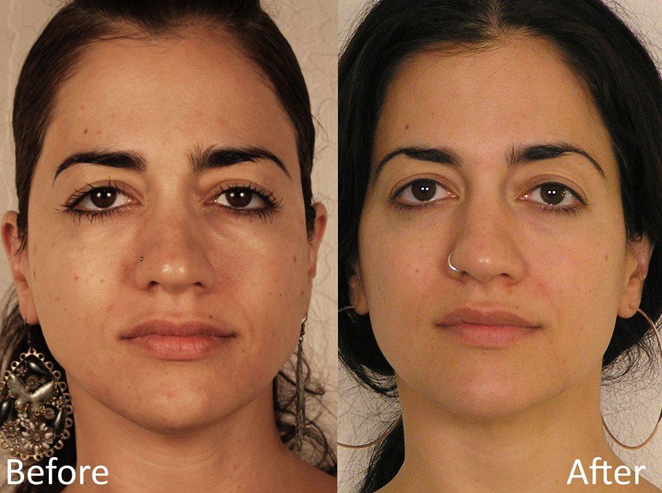 Micro current facial treatment