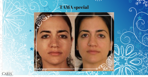 TAMA Microcurrent treatments are BOGO in July