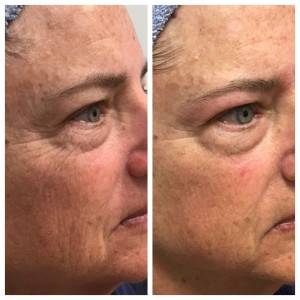 TAMA Magic Facelift using microcurrent and LED